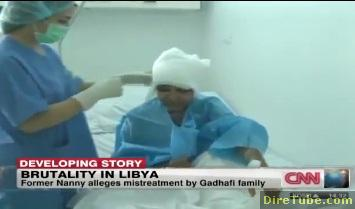 Burned Gadhafi Family Nanny Gets Treatment
