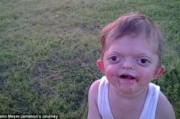 Mother fights back against heartless Internet trolls who used a picture of her disabled son in a cruel meme