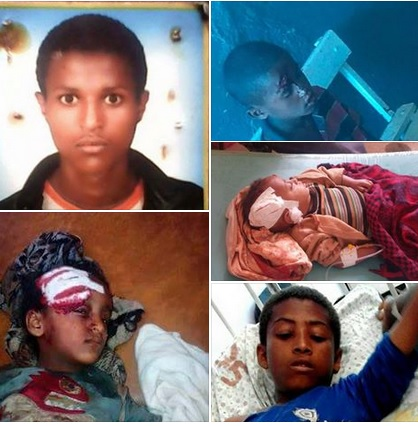 17 Children Killed in Oromia Protest: Global Voice