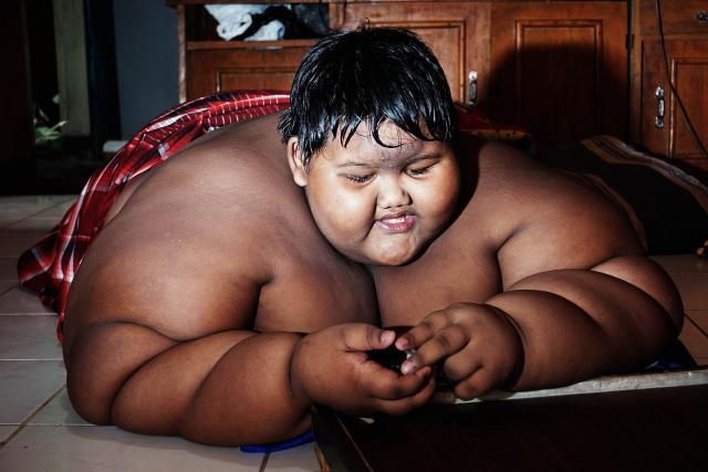 192kg 10-Year-Old Has Life Threatening Obesity
