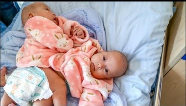 Two Precious: Conjoined Twins Separated Using 3D Tech - bTV