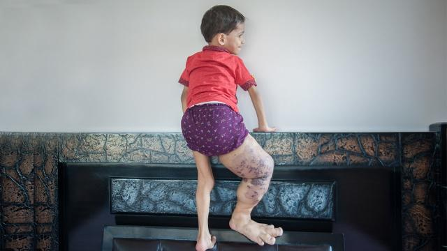 The Little Boy With A Giant Leg: BORN DIFFERENT