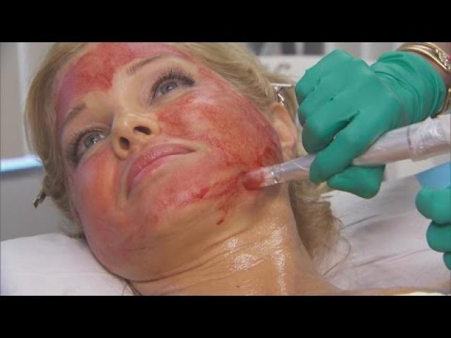 Former 'Baywatch' Actress Donna D'Errico Uses Blood For Extreme Beauty Regime