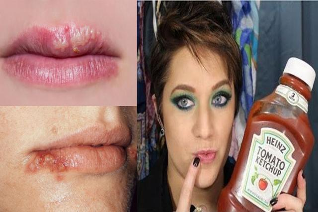This is no Joke You can GET RID of COLD SORES with KETCHUP