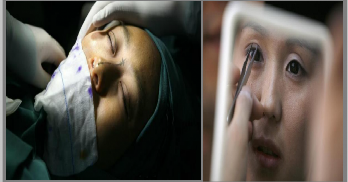 To Escape $3.7 Million Debt, A Chinese Woman Transformed Her Appearance With Plastic Surgery