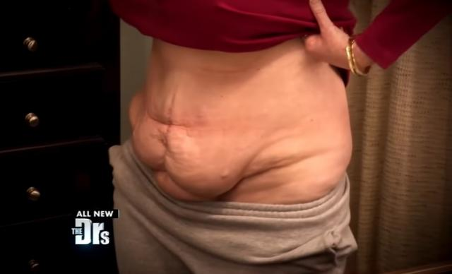 Failed Surgeries Ruined My Body!