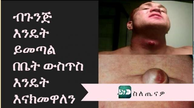 Ethiopia - How to treat malignant (ብጉንጅ) at home?