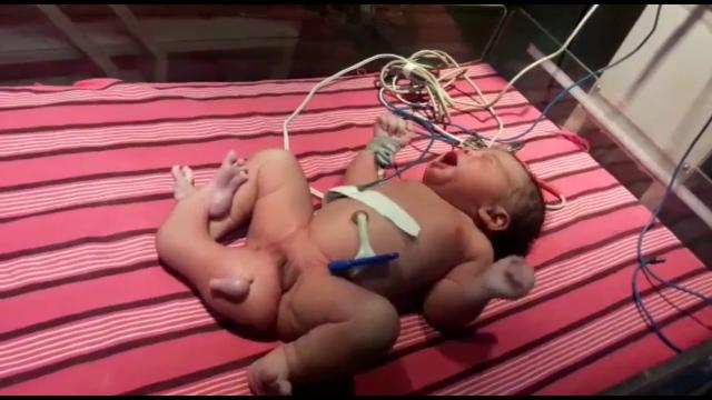 Today Baby Girl Born With Three Legs in Telangana