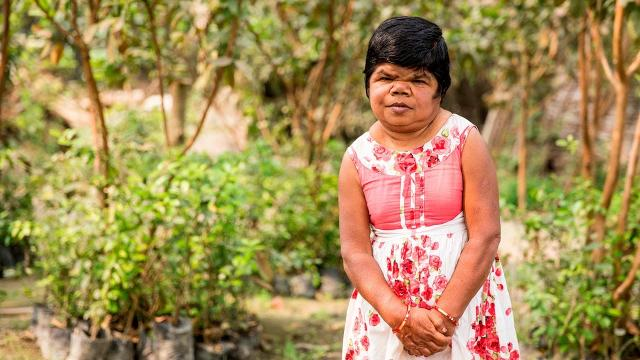 50-year-old Woman Stopped Growing At FIVE