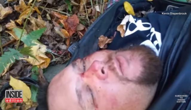 Afraid He Will Die, Man Records Messages For Family After Motorcycle Accident