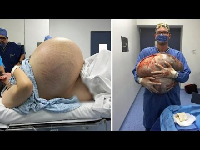 Woman with Giant Ovarian Cyst weighing as 10 BABIES thought to be World's Largest removed whole