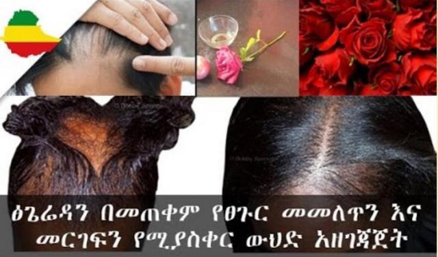 Ethiopia: Rose & Onion Hair mask for damaged hair