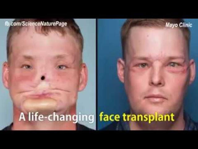 Face transplant allows this man to live a normal life. Hats off to all the surgeons involved!