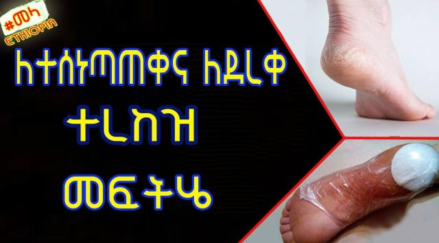 ETHIOPIA - Home Remedies for Cracked Heels in Amharic