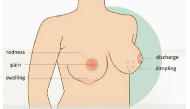 Ethiopia: Breast cancer causes, symptoms and treatment