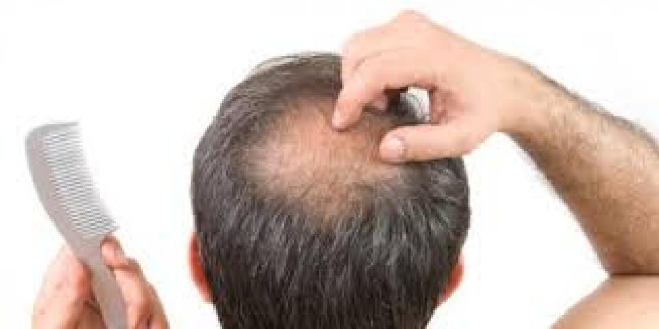Hair loss and tips - ፀጉር ለምን ይሳሳል ? ለምንስ ይሸብታል?