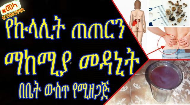 ETHIOPIA - የኩላሊት ጠጠርን ማከሚያ መዳኒት - ቤት ውስጥ ማዘጋጀት የምንችለው | Home Remedies for Kidney Stones in Amharic