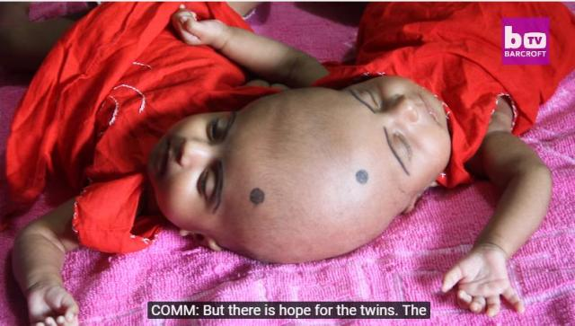Surgery Hope For Conjoined Twins: BORN DIFFERENT