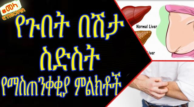 ETHIOPIA - ጉበታችን ሲጎዳ | Warning Signs Show That Your Liver is Full of Toxins
