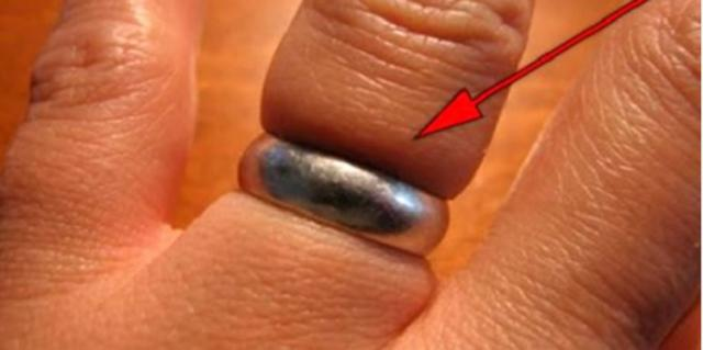 How To Remove A Ring From A Swollen Finger [BEST METHOD]