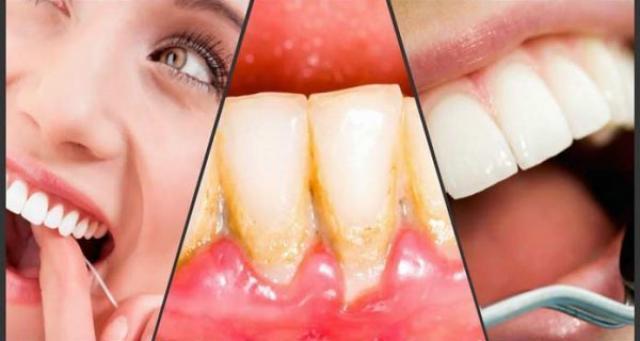 Ethiopia: How to remove dental plaque