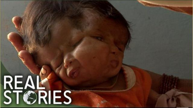 The Girl With Two Faces (Medical Documentary) - Real Stories